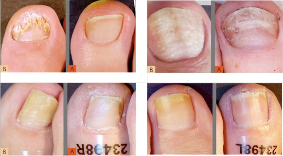 What Are The Signs And Symptoms Of Nail Fungus