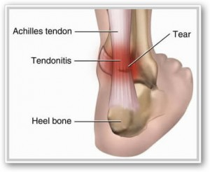 Pictures Of Tendonitis 81