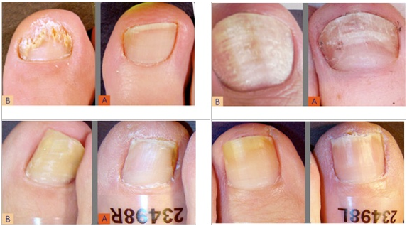 BEFORE AND AFTER PHOTOS What Are The Signs And Symptoms Of Nail Fungus